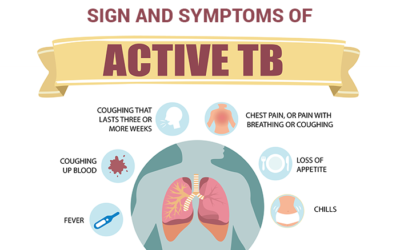 How to Recognise the Signs of Tuberculosis
